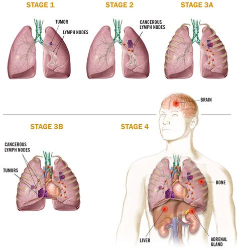Medical Illustration: Non-Small Cell Lung Cancer
