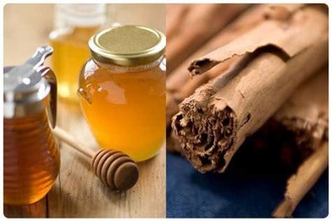 medicina natural para la osteoporosis | facilisimo.com