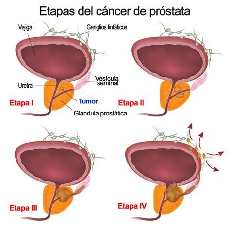 [MegaPost] Cura Natural Próstata: Prostatitis HBP y Cáncer ...