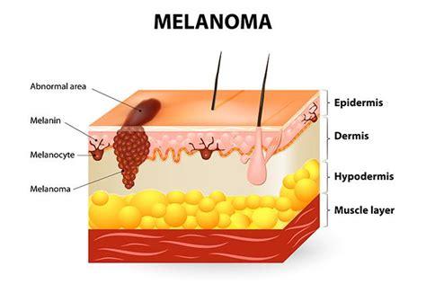 Melanoma, sintomi, cause da evitare e cura possibile ...
