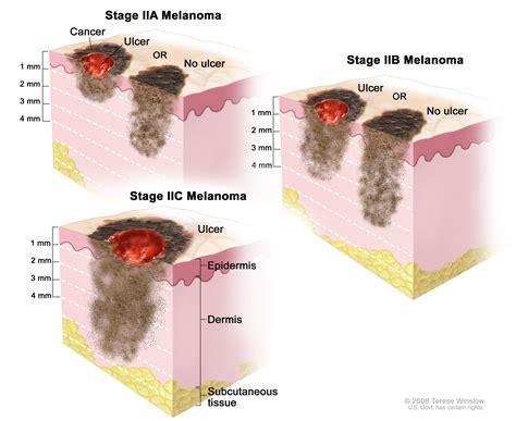 Melanoma Treatment (PDQ®)—Patient Version - National ...