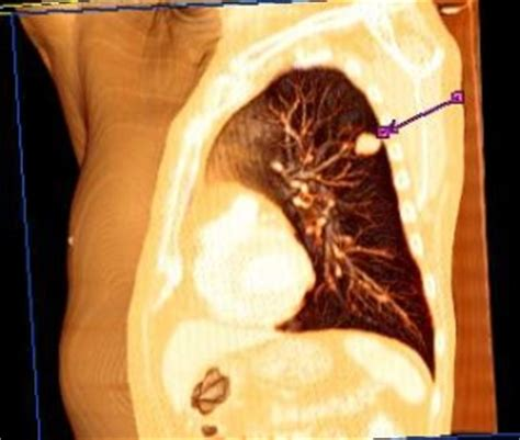 Merck Serono lung cancer drug fails to meet its primary ...