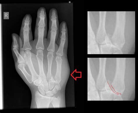 Metacarpal fractures - Musculoskeletal Medicine for ...