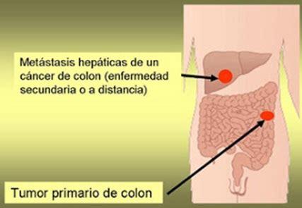 Metástasis hepáticas en cáncer de colon. Por qué el hígado ...