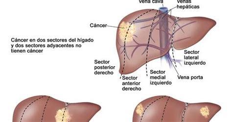 Metástasis hepáticas en cáncer de colon. ¿Por qué el ...