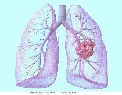 metastasis pulmonar, sintomas, tiene cura, causas, cancer ...