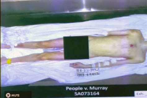 Michael Jackson Death Trial: Graphic Autopsy Image ...