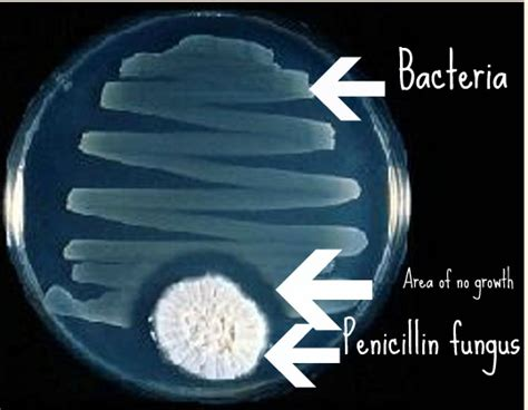 Microbes: Fungus and Bacteria – Intrinsically Linked ...