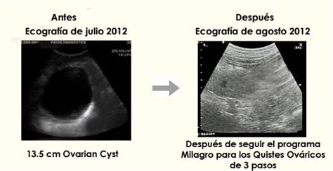 Milagro para los Quistes Ováricos  TM    Los Secretos para ...