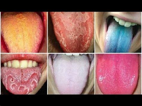 Mira cómo tu lengua revela qué enfermedades padeces - YouTube