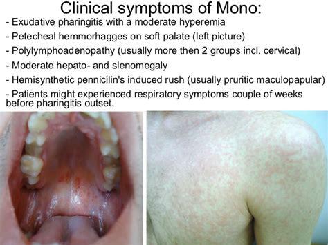 Mono Symptoms – defenderauto.info