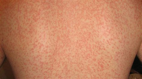 Mononucleosis: Causes, Symptoms, and Diagnosis