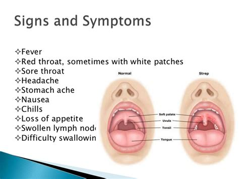 Mononucleosis Causes Symptoms Treatment How Is Mono ...