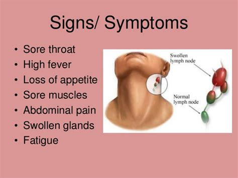 Mononucleosis   Homeopathic treatment by Doctor Tsan in ...