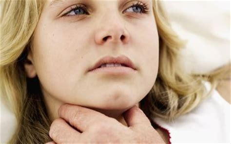 Mononucleosis  Mono  Symptoms and Signs