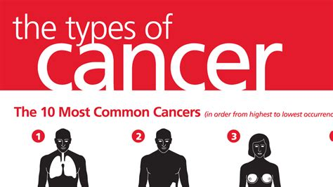 Most Common Types of Cancer [infographic]   Infographicspedia