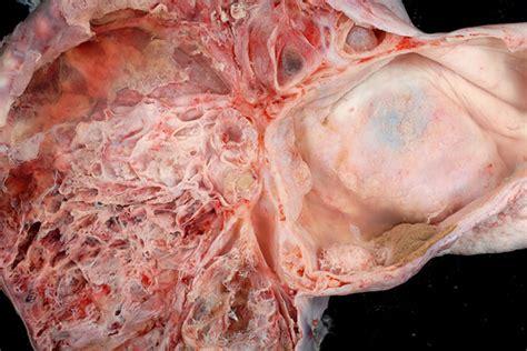 Mucinous Tumor   Mucinous Medical