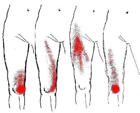 Myofascial Pain Syndrome  MPS  and Fibromyalgia   This ...
