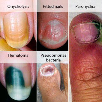 Nail Fungus Treatment, Symptoms, Medications, Causes ...