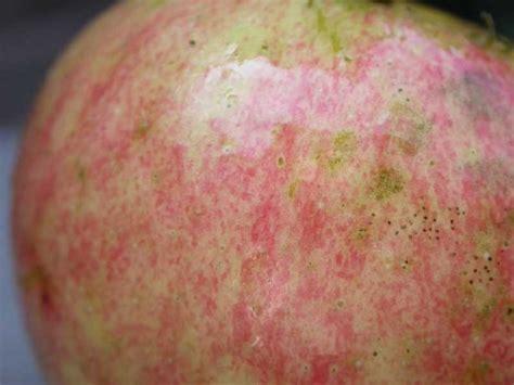 Natural Treatment for skin Fungus | Skin Fungus