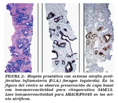 Neoplasia Prostática Intraepitelial; Neoplasia ...