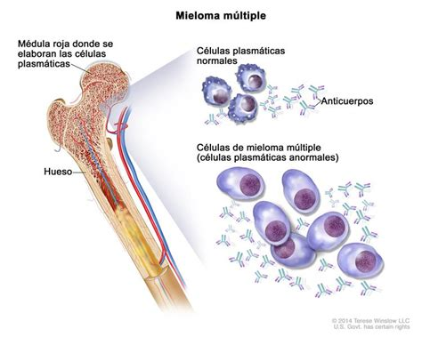 Neoplasias de células plasmáticas  incluso mieloma ...