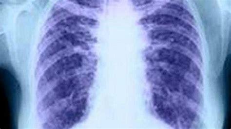 Neumólogos quieren que Sanidad incluya el diagnóstico ...