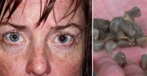 New Drug - 'The World's Scariest' - Literally Turns You ...