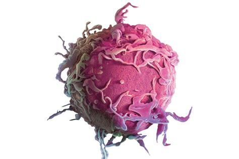 Novembro Azul: Câncer de próstata, diagnóstico precoce é o ...