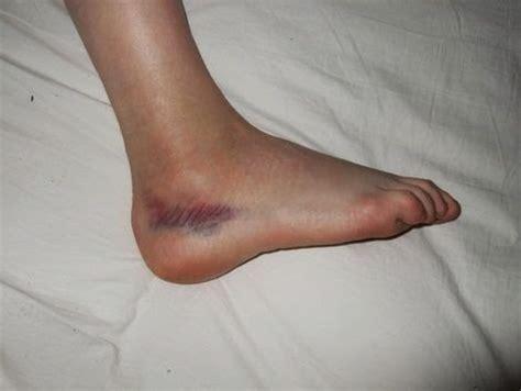 Nueva Génesis Terapias: ¿Por qué los pies se hinchan?