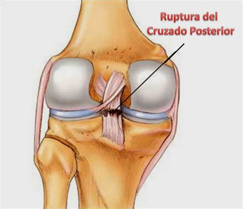 Ortopedia Palmas | Rodilla