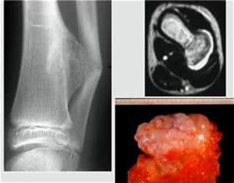 Osteosarcoma  cáncer de huesos    TODA SU INFO