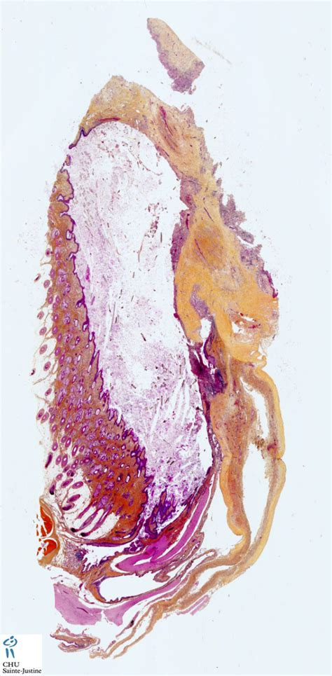 ovarian mature cystic teratoma   Humpath.com   Human pathology