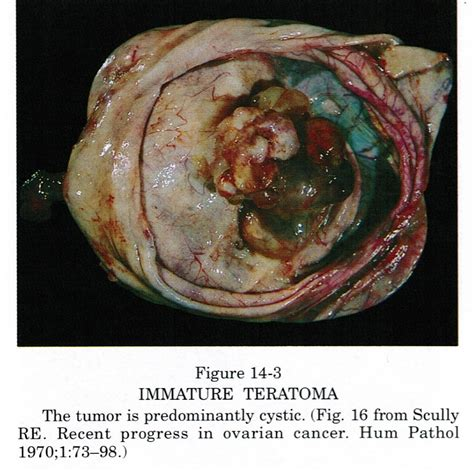 Ovarian Teratoma | www.pixshark.com - Images Galleries ...