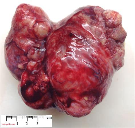 ovarian tumors - Humpath.com - Human pathology