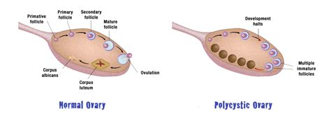 Ovary Definition Gallery