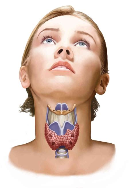 Overdiagnosis Could Be Behind Jump In Thyroid Cancer Cases ...