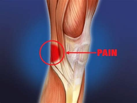 Pain Behind Knee: Causes, Symptoms, Treatment, Home ...
