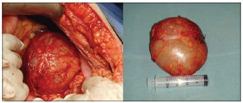 Pancreas: Quiste En El Pancreas