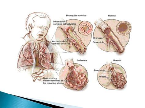 PARAR DE FUMAR - Ejercicios Pulmonares por Pablo Gregato