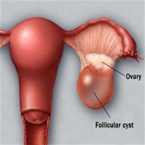 Pathology definition - Ovarian Cyst - Medical Zone