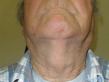 Patient with bilateral parotid enlargement and ...