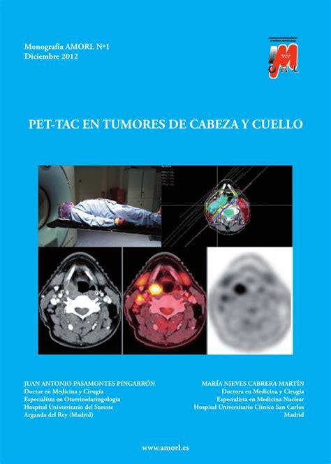 PET-TAC en tumores de cabeza y cuello (PDF Download Available)