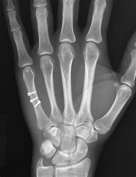Pics For > 5th Metacarpal Fracture Cast