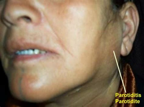 Pin Salivary Gland Enlarged Causes Blocked on Pinterest