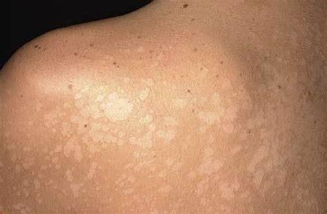 Pityriasis Alba   Causes, Treatment, Pictures, Symptoms ...