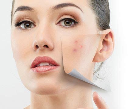 Plasma rico en plaquetas para las marcas de acné y las ...