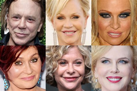 Plastic surgery horror show: A-list cosmetic surgery ...