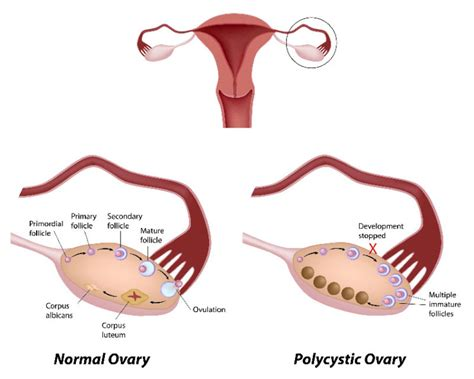 Polycystic Ovarian Syndrome Symptoms | Best Herbal Health
