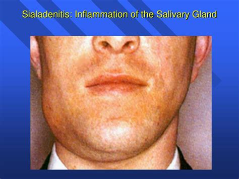 PPT - Introduction to the Salivary Glands PowerPoint ...